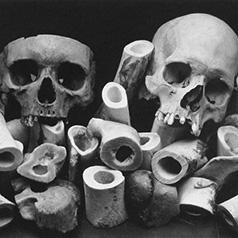 Фотограф Ирвинг Пенн (Irving Penn) — Пейзаж из костей (Bone Landscape) — Натюрморт (Still life)
